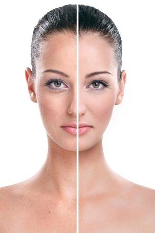 Natural-anti-aging